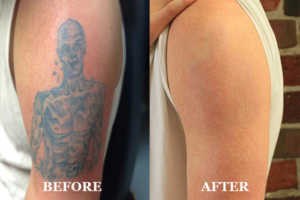 laser tattoo removal, Laser tattoo removal – fight those unwanted tattoos in 2021